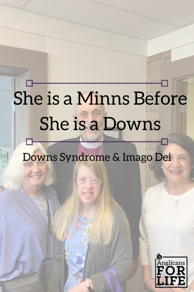 Downs Syndrome Imago Dei blog post pin